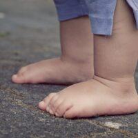 Kinderrheumatologie Luzern
